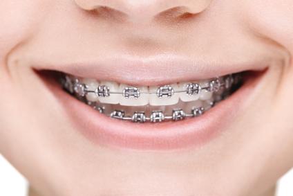 aide sociale orthodontie